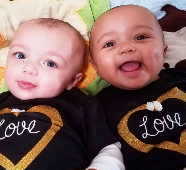 These Awesome Little Twin Sisters Have Defied All The Laws Of Nature