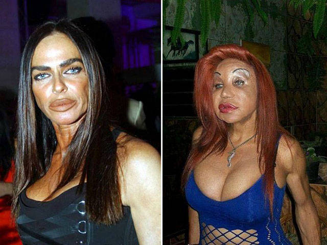 When The Plastic Surgery Fails Irreversibly