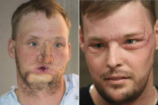 Face Transplantation Is A Thing!