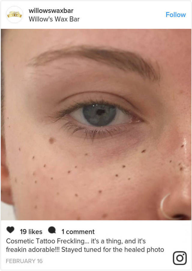 Some Try To Remove Their Natural Freckles – Others Tattoo Artificial Ones