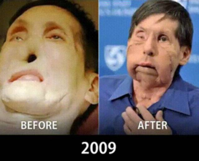 Face Transplantation Is Getting More And More Perfect Each Year
