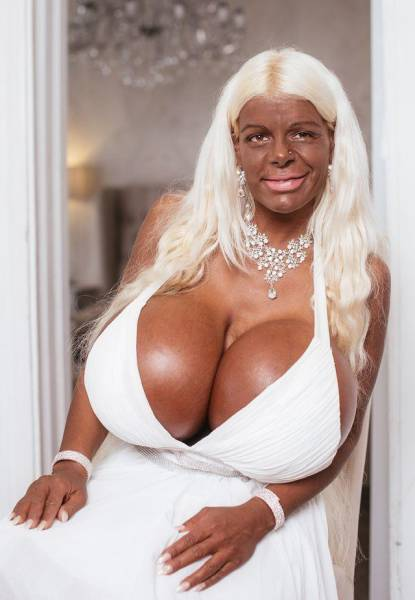 When You Like Tanning And Plastic Surgeries Beyond Any Common Sense