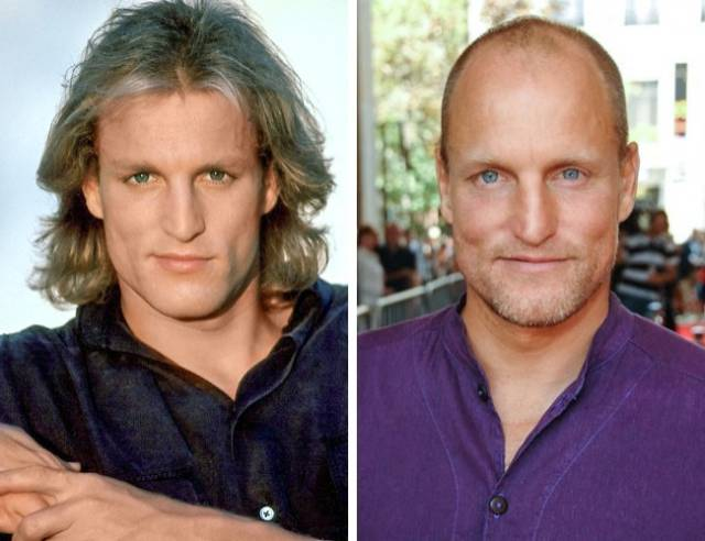 These Celebs Were Not Born Bald, You Know