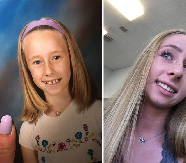 Braces Can Do Wonders With People's Smiles!