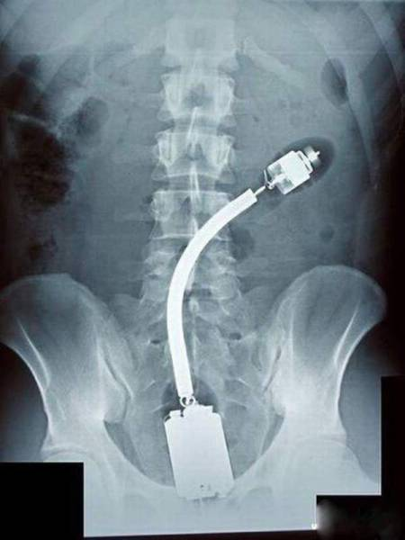 Sometimes, X-Rays Show What You Don't Want To See