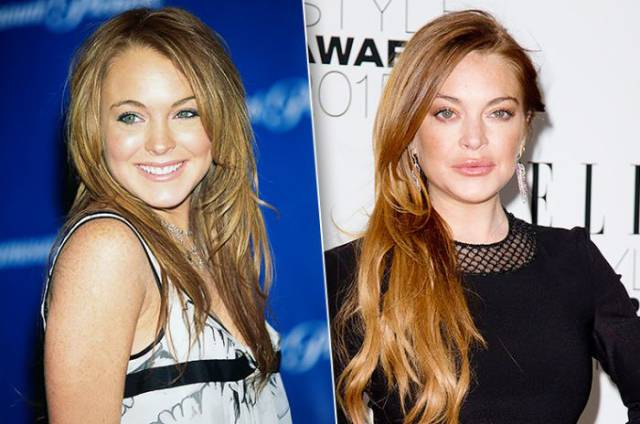 These Celebs Increased Their Lips – But Should They Have Done It?