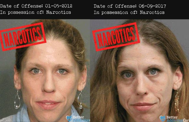 These Horrifying Mugshots Show The Real Effect Of Hard Drugs On Human Body