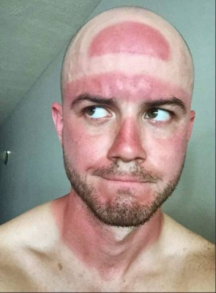 Face It, Sun Is Stronger Than You