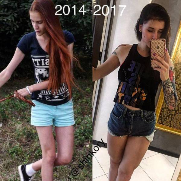 This Russian Teen Has Proved That Anorexia Can't Stop You