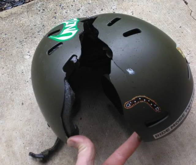 This Is Why Helmets Are So Important On The Road!