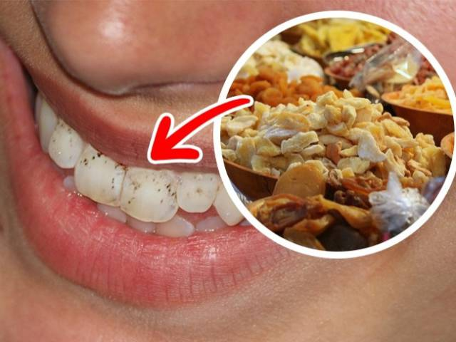 You'd Better Avoid These Foods To Keep Your Smile Fresh And Healthy