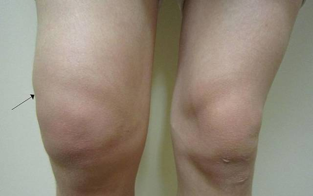 These Are The Most Physically Painful Things Known To Humanity