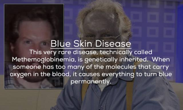 Even Scientists Can't Wrap Their Heads Around These Diseases