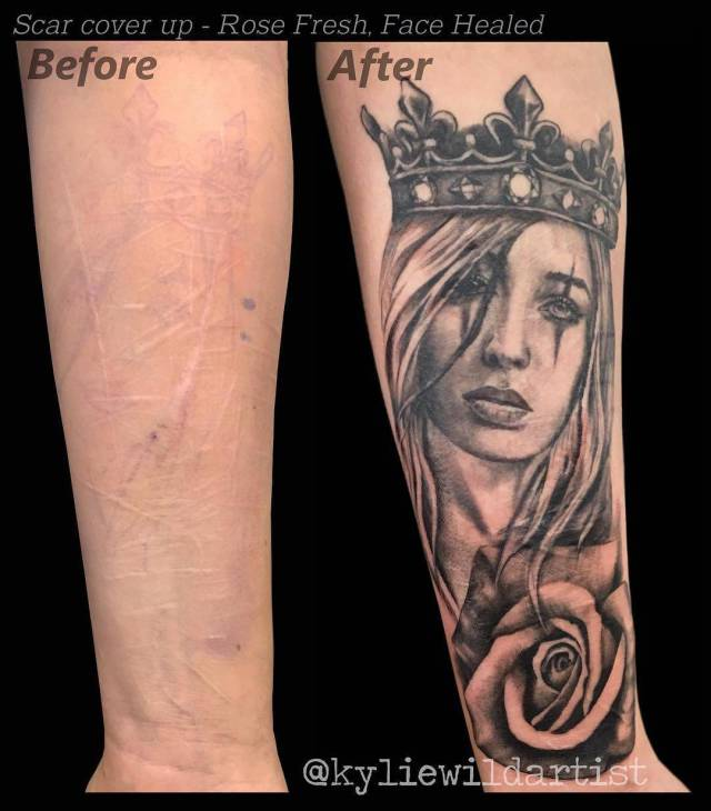 Awful Scars Can Be Covered With Beautiful Tattoos