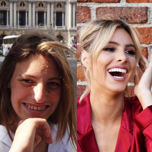 This Instagram Model Is An Example Of How Plastic Surgery Can Change Your Life