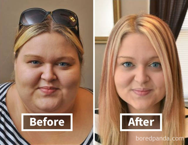 weight loss face change management