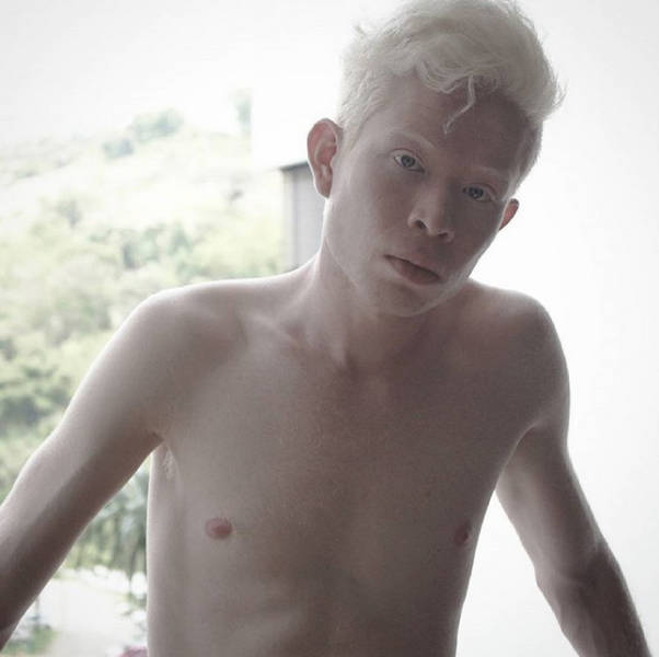 How Albinos From Various Races Look Like