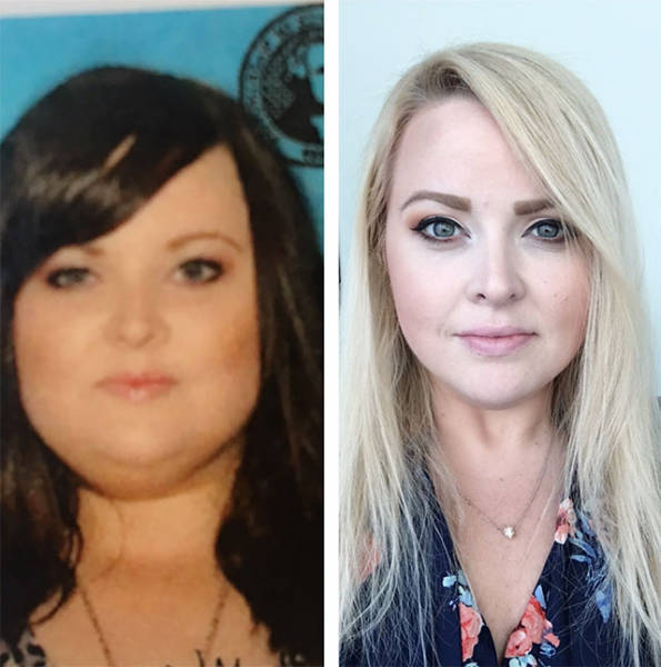 People Who Won Their Battles Against Fat