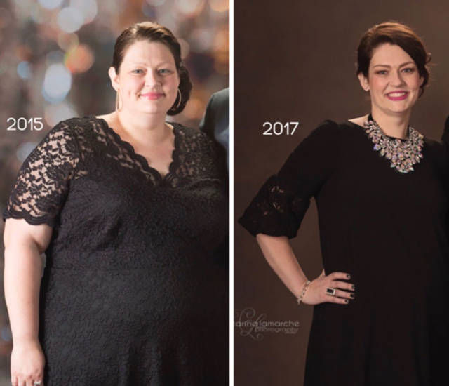Overweight Woman Lost 40% Of Her Weight After Starting To Follow Her Nutritionist's Guidance