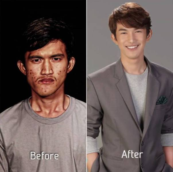 Before and After Pictures That