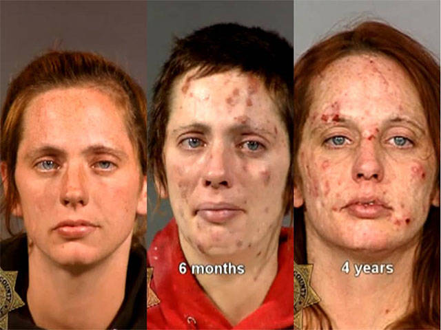 This Is How Meth Changes People