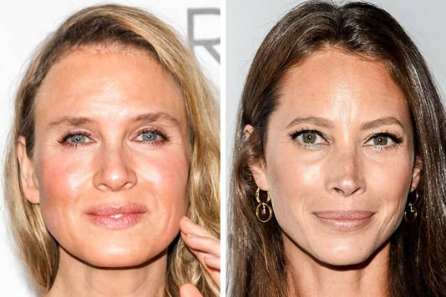How Plastic Surgery Affect Celebs Who Were Actually Born In The Same Year