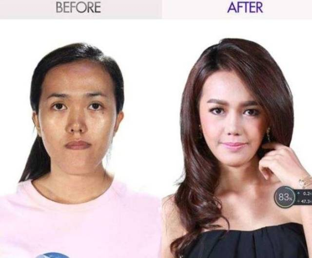 Plastic Surgery Can Transform Just About Anyone!
