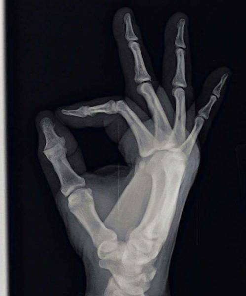 X-Rays That Will Make You Very Uncomfortable