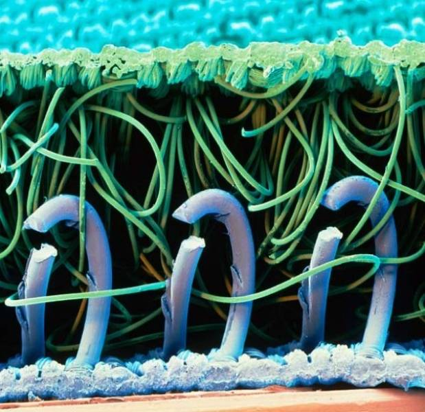 Everything Is Different Under An Electron Microscope