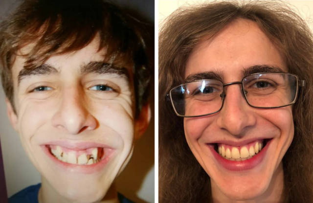 Before And After Photos With Some Shocking Contrasts