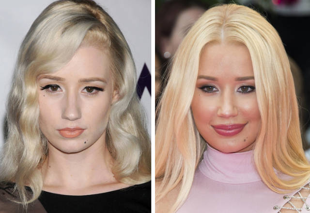 How Celebs Looked Like Before They Turned To Plastic Surgery