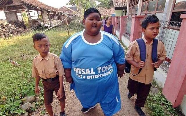 Indonesia's Fattest Kid Is Now Only A Half Of His Past Self