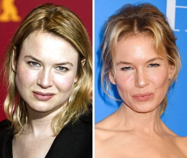 Celebrity Photos: Then Vs. Now