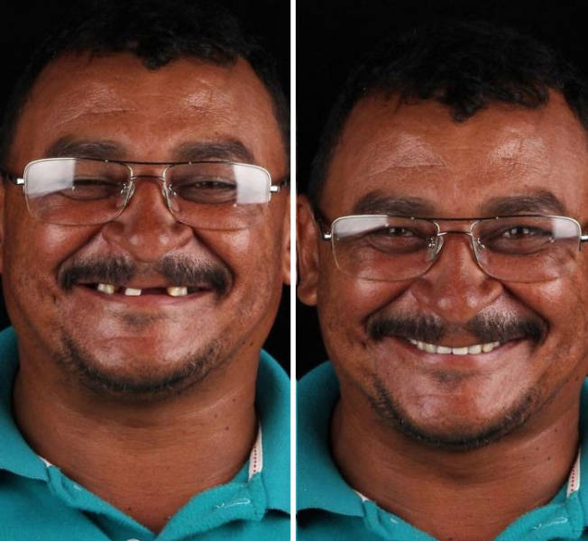 Brazilian Dentist Helps Poor People Transform, And Here Are The Happy Results
