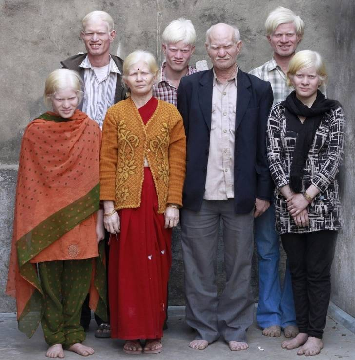 Genes Chose These People To Be Different