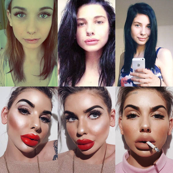 Plastic Surgery Wasn't Good For Them…