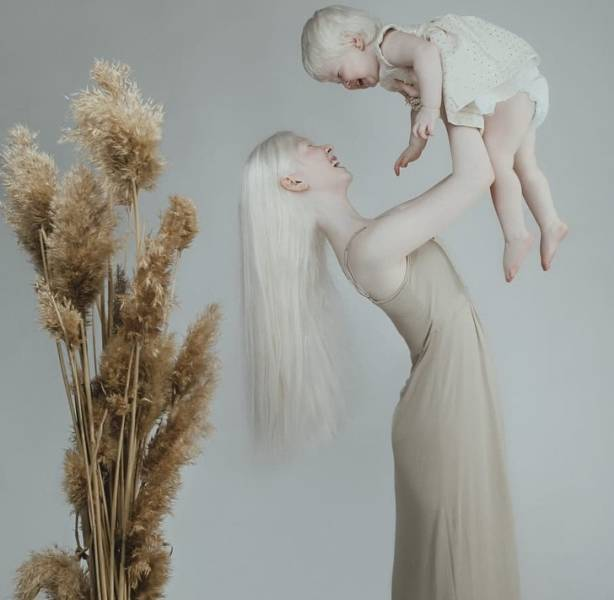 Albino Sisters Go Viral With Their Unusual Photos