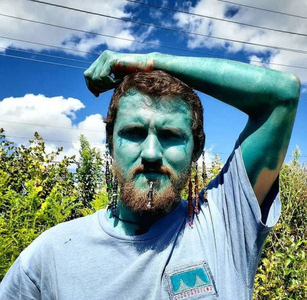 Canadian Guy Turns Into A Smurf