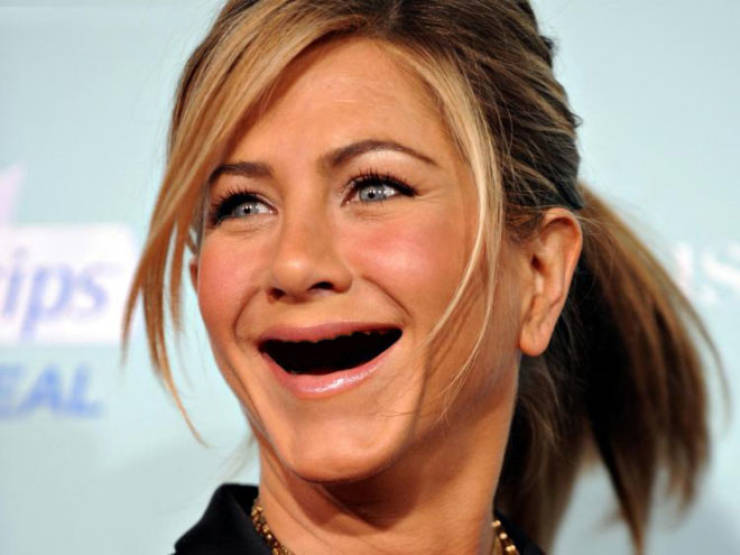 What If Celebs Had No Teeth…