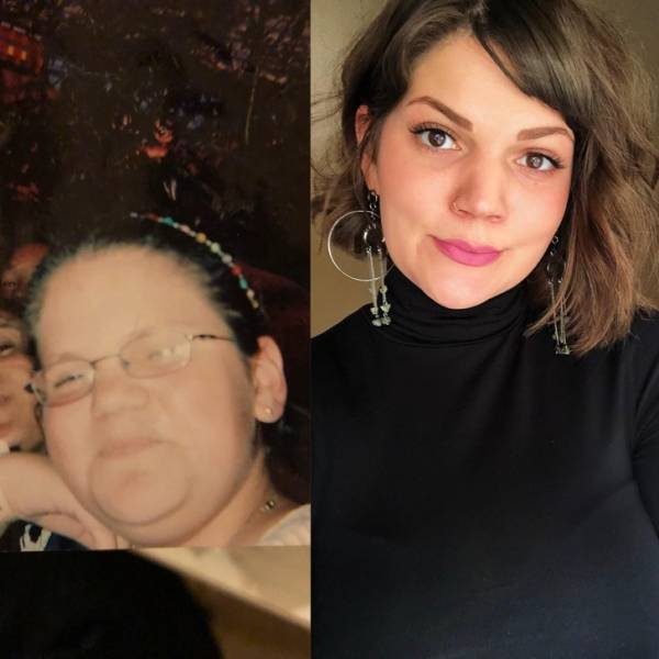 """""""Before And After"""" Photos Of People Show All The Difference"""