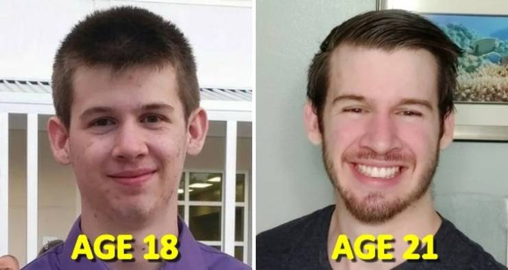 """Before And After"" Photos Of People Show All The Difference"