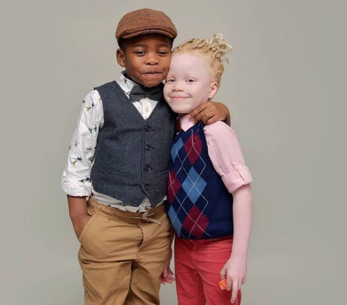 These Twins Have Different Skin Colors!