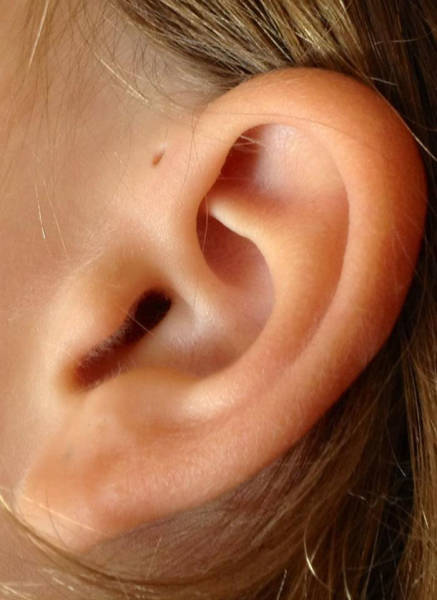 But What If That Tiny Hole Above Your Ear Serves A Purpose?