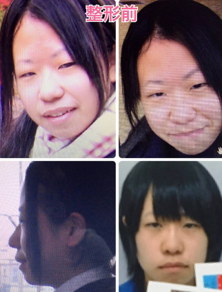 Japanese Girl Transforms With The Help Of Plastic Surgery