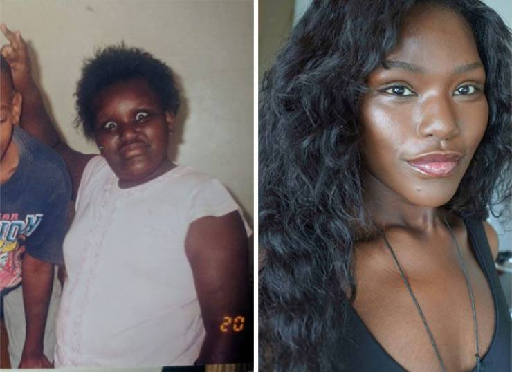 """Ugly Ducklings"" Share Their Drastic Transformations"