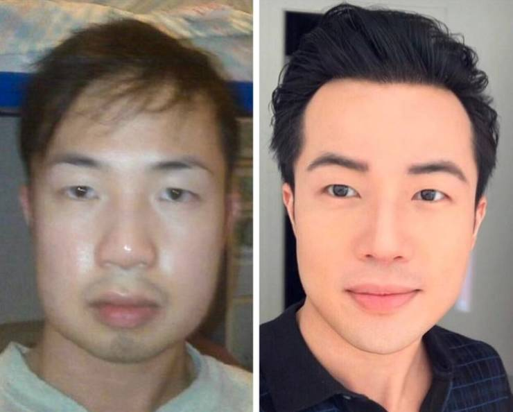 People Who Decided To Take A Risk Of Plastic Surgery