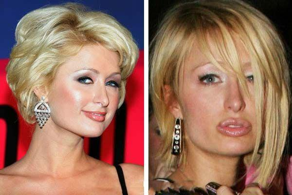 When plastic surgery fails (38 pics)