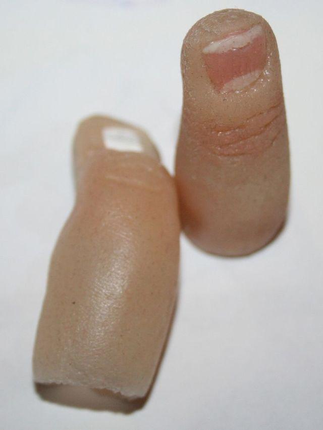 Extraordinary prosthesis (13 pics)