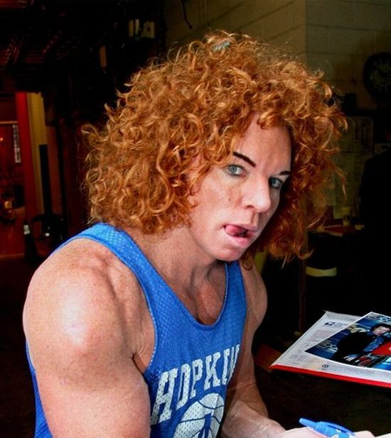 Carrot Top Another Victim Of Plastic Surgery 31 Pics