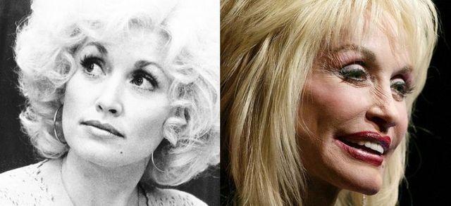 Celebrities Now And Then 42 Pics Izismile Com